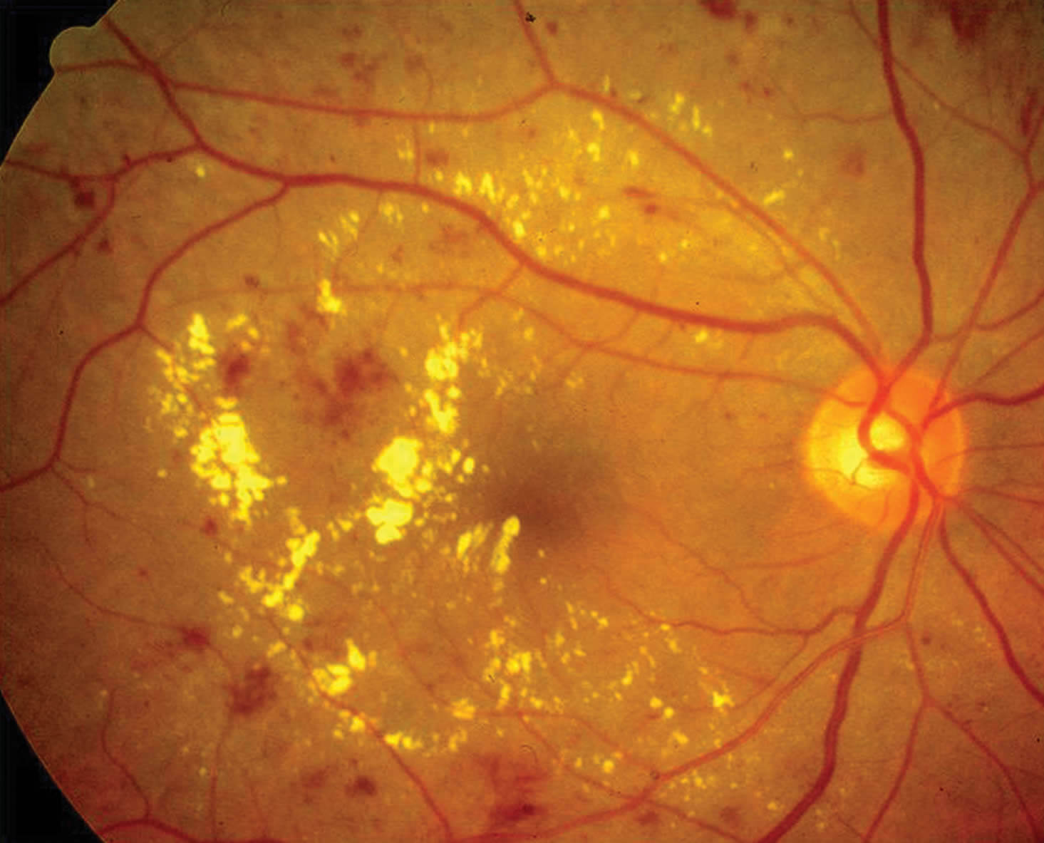 Diabetic Macular Edema: Causes, Symptoms, Treatment & Prevention