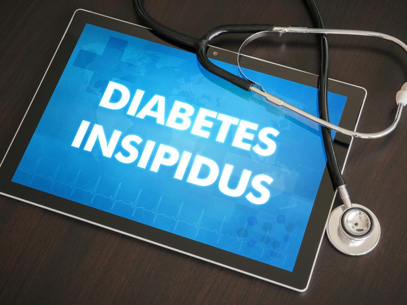 Understanding diabetes insipidus